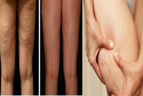 Natural Remedies To Eliminate Cellulite