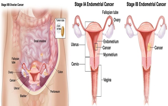 Ovarian Cancer, The Silent Killer, And What You Need To Watch Out For