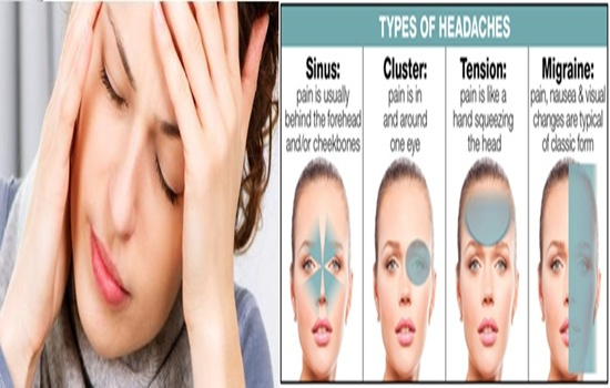 Photo of Symptoms of different kinds of headaches