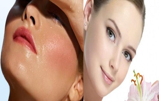 Photo of Four Tips To Care For Oily Skin During The Summer Season