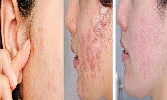 ADULT ACNE CAUSES AND HOW TO FIHGT IT
