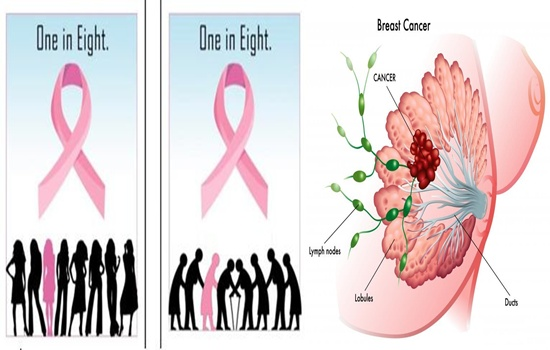 Photo of Does Breast Size Contributes To Developing Breast Cancer?