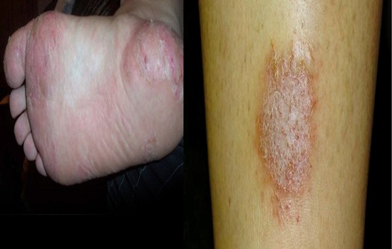 Photo of ECZEMA – OVERVIEW TO HELP YOU KNOW ABOUT ECZEMA