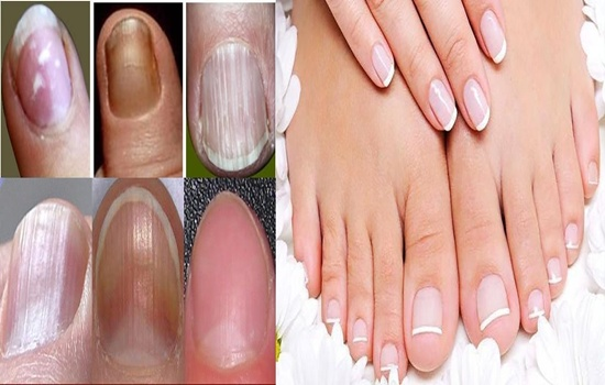 Photo of Nail Health – Do you pay enough attention to your nail health?