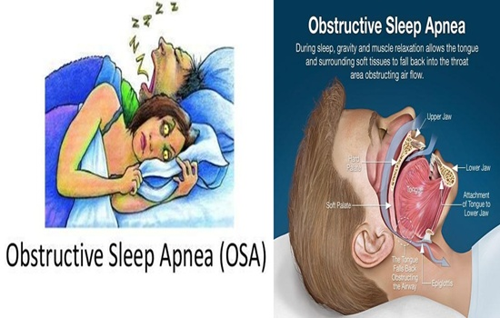 Photo of Do you have sleep apnea, and what do you know about it?