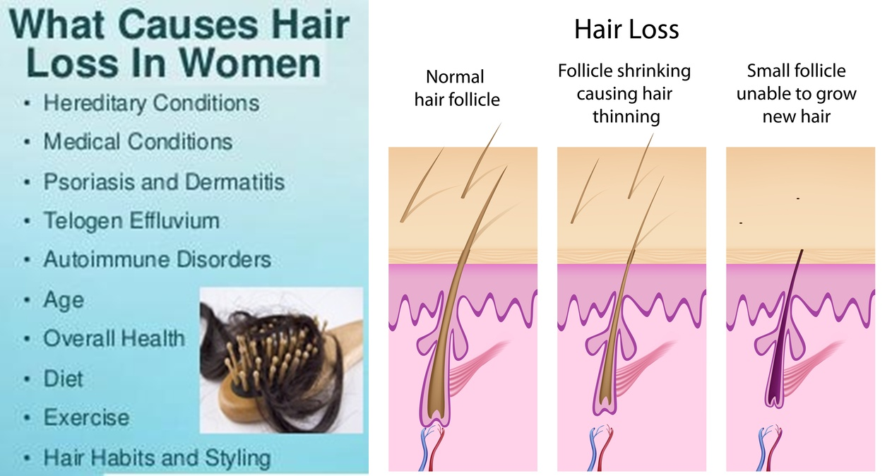 real facts and reasons for women's hair loss