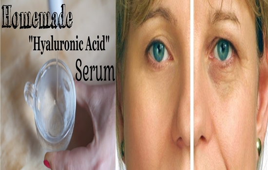 Photo of The Top 4 Wondrous Benefits of Hyaluronic Acid for Your Beauty