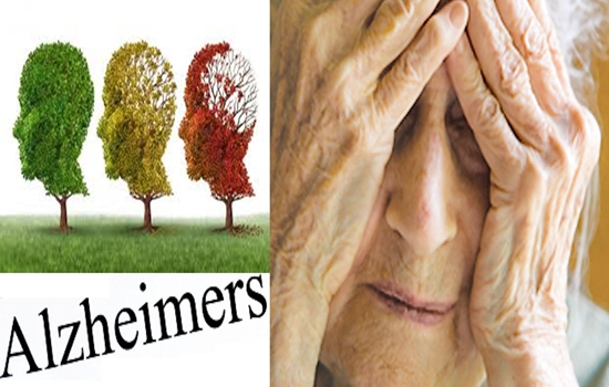 5 False Facts People Usually Believe About Alzheimer