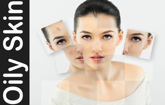 Photo of 10 Faults to avoid for oily skin care