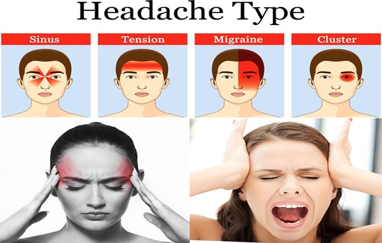 Photo of How to Recognize Your Headache from its Symptoms