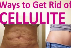 SIMPLE NATRUAL REMEDIES TO GET RID OF CELLULITE