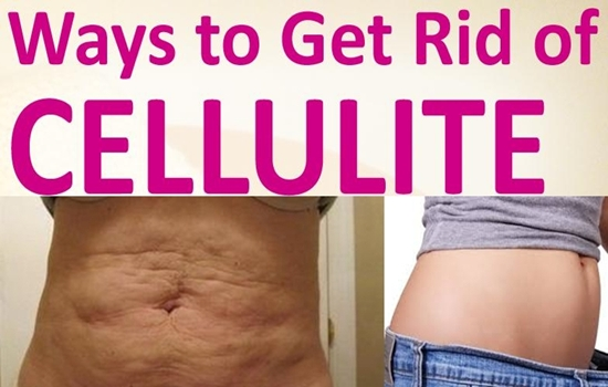 Photo of SIMPLE NATRUAL REMEDIES TO GET RID OF CELLULITE