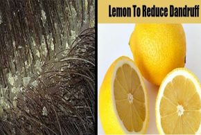 5 Great Natural Dandruff Treatments All Made of Lemon
