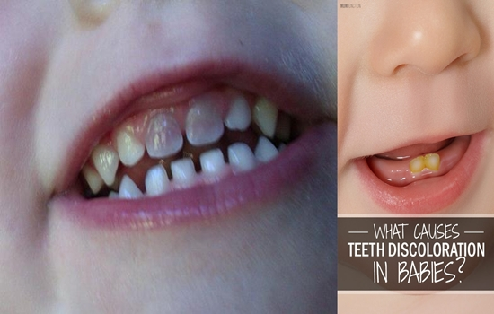 Photo of 6 Reasons Why Your Baby's Teeth Are Discolored