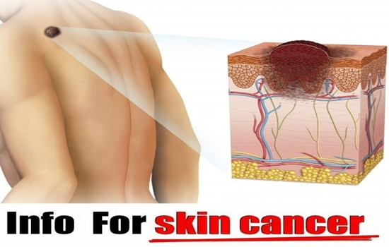 Photo of 5 Symptoms That Tell You That You Have Skin Cancer