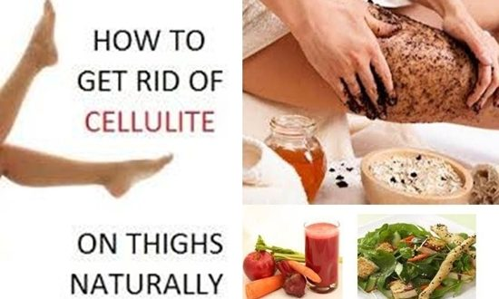THE NATURAL REMEDIES TO GET RID OF CELLULITE