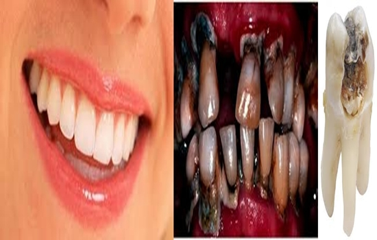 Photo of 4 Unexpected Reasons Why You Have Poor Dental Health