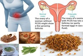 Best Natural Remedies To Prevent And Treat PolyCystic Ovarian Syndrom  (PCOS)