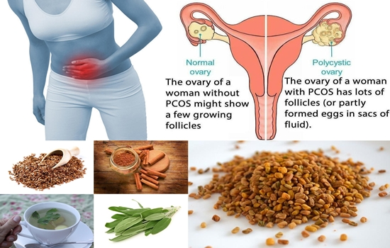Best Natural Remedies To Prevent And Treat PolyCystic Ovarian Syndrom (PCOS).