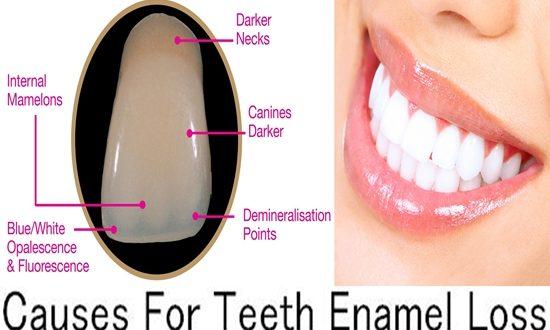 Causes For Teeth Enamel Loss