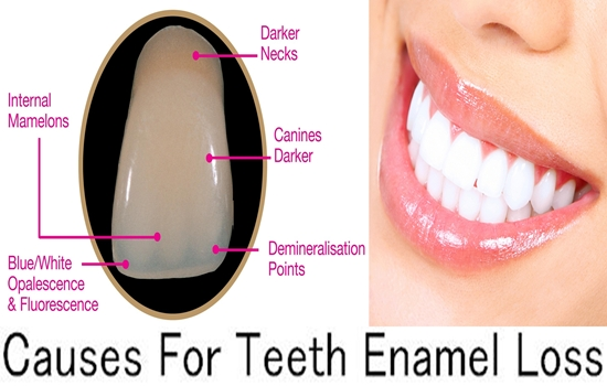 Causes For Teeth Enamel Loss