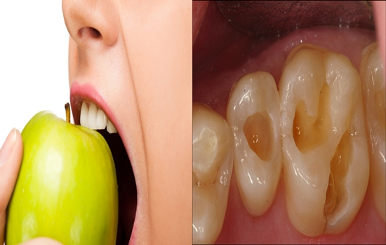 Photo of 5 Things You Would Never Guess Are Damaging Your Teeth
