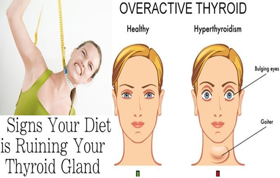 Photo of Ways in Which Dieting Can Destroy Your Thyroid Gland