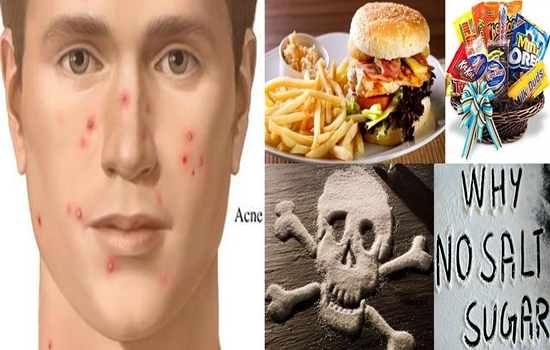 Photo of 4 Types of Food You Should Omit from Your Diet to Prevent Acne