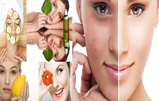 Photo of How To Prevent And Treat Acnes Naturally