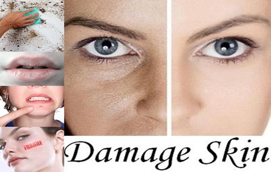 Mistakes You Do That Seriously Damage Your Skin