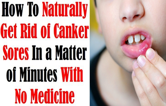 Photo of Natural Easy Treatments To Get Rid Of Mouth Ulcers Fast