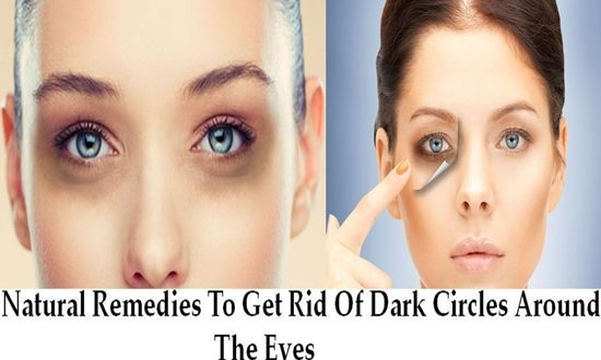 Natural Remedies To Get Rid Of Dark Circles Around The Eyes