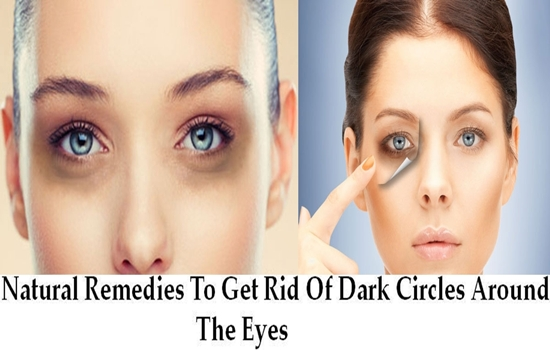 Photo of Natural Remedies To Get Rid Of Dark Circles Around The Eyes