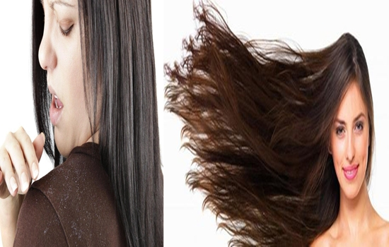 Photo of Common Questions About Dandruff Answered By Beauty Experts