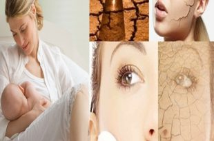 Top 10 Unexpected Reasons of Dehydration