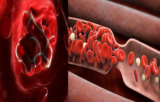 Facts about Blood Clots You Should Know