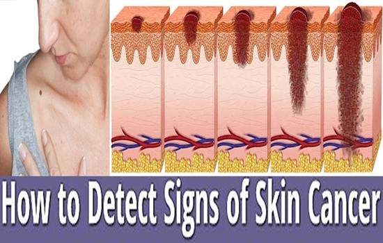 Photo of How To Detect Skin Cancer