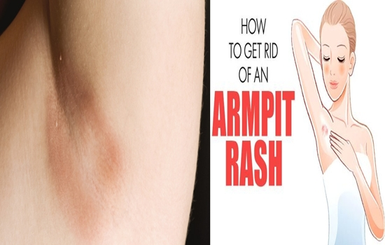 Photo of How To Get Rid Of Armpits Rashes Quickly