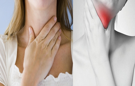 How to Naturally Cure Laryngitis