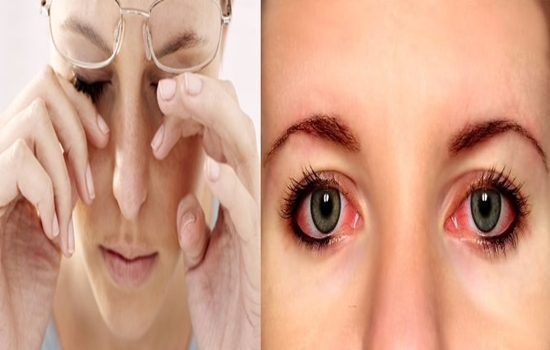Photo of How to Prevent Eye Redness