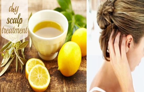 Photo of Natural remedies to treat dry scalp!