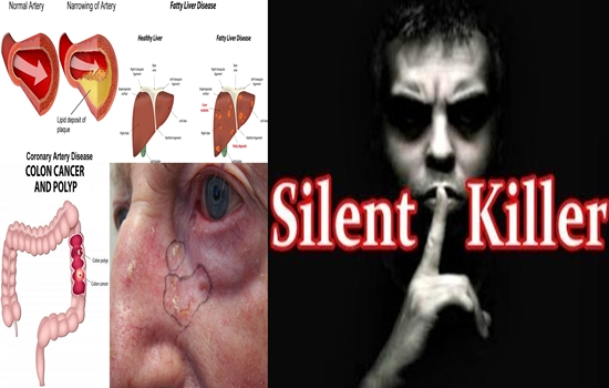 Photo of he Most Common Silent Killers You Must Know About