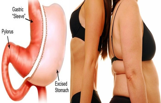 Photo of All You Need to Know about Sleeve Gastrectomy