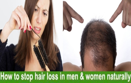 Photo of Stop hair loss and get what you lost back by this simple trick
