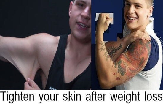 Photo of Tighten your skin after weight loss with these 5 ways