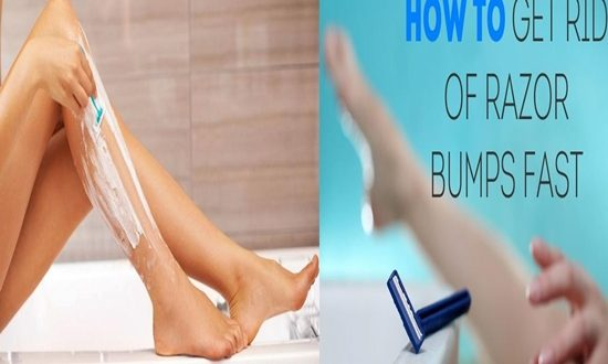 Tips To Prevent And Treat Razor Bumps For Women