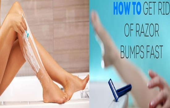 Photo of Helpful Tips To Prevent And Treat Razor Bumps For Women