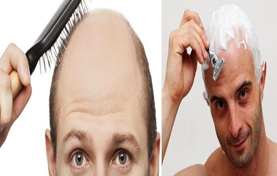 Photo of 3 Important Tips to Follow when You Are Bald