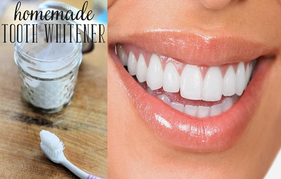 Photo of Apply this homemade paste for 14 days for whiter teeth!