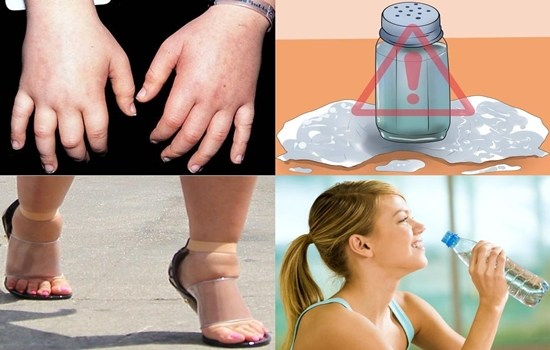 ways to get rid of water retention in the body